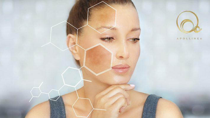 Macchie scure della pelle: cosa sono e come eliminarle